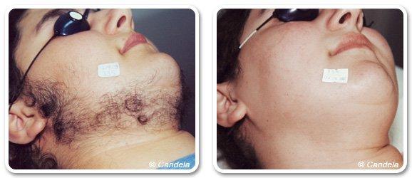 Epilation laser de la barbe à Paris | Séances et prix ...