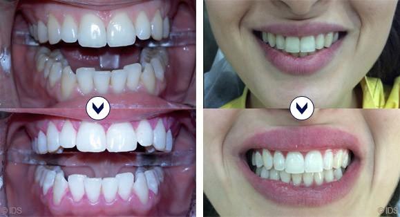 blanchiment des dents laser