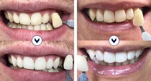 blanchiment des dents dentiste prix