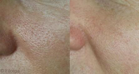 Traitement des pores dilatés avec le NCTF® 135 HA