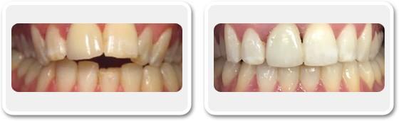 Amélioration de l'alignement des dents