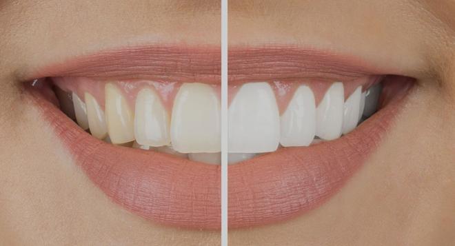 Blanchir Les Dents Dentition Dr Morgane Cohen